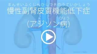 慢性副腎皮質機能低下症/家庭の医学動画版 ミルメディカル