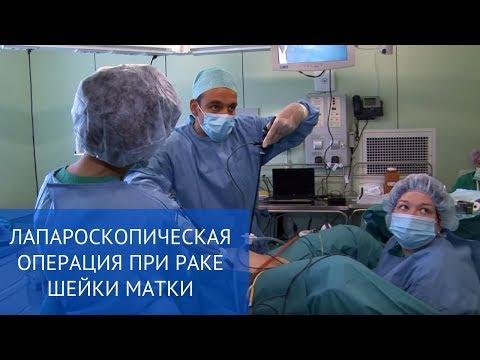 Лапароскопическая операция при раке шейки матки
