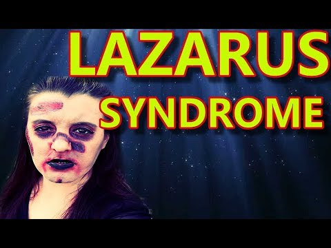 Lazarus Syndrome / Peculiar Occurrences
