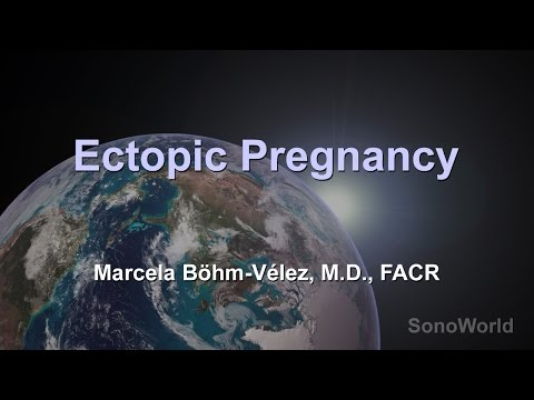 How Ectopic Pregnancies Are Located With Ultrasound