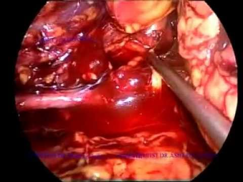 laparoscopic retro peritoneal left ureterolithotomy.