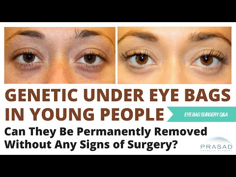 Eye Bags are Genetic and Can Appear in Teenagers - Options for Treatment