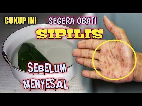 coba-cara-ini!!-cara-mengobati-sipilis-secara-alami-||-obat-kencing-nanah-alami