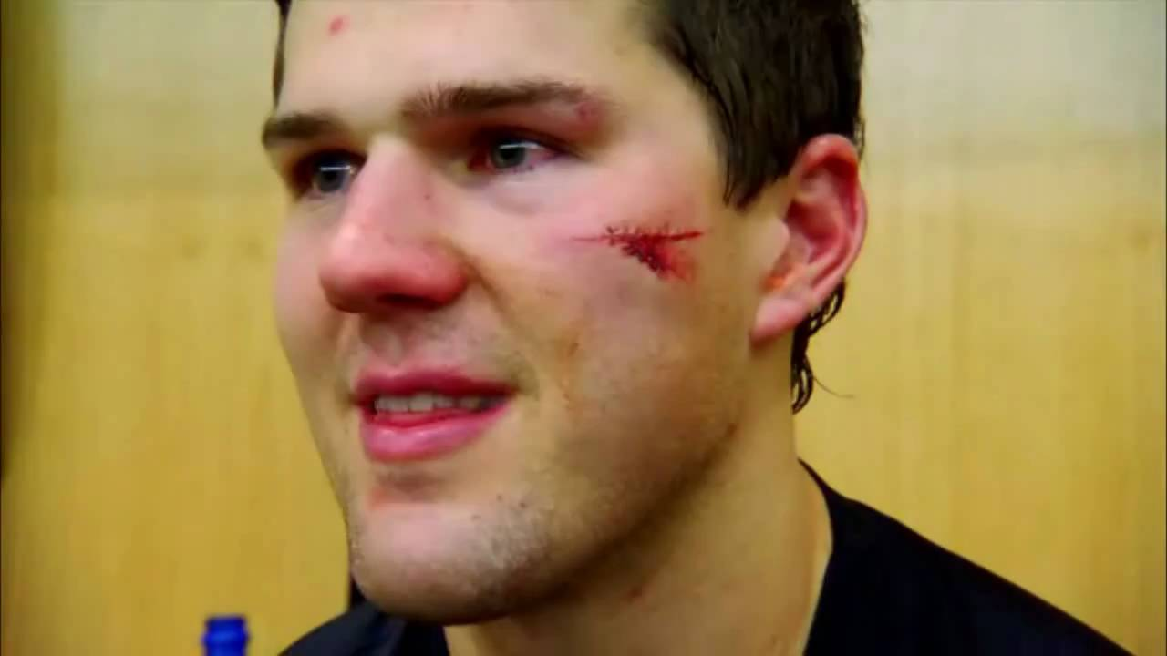 Ben Lovejoy takes a puck to face (Pittsburgh Penguins) b3d5fab10e0