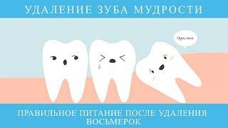 Удаление зуба мудрости. Правильное питание, после удаления восьмерок