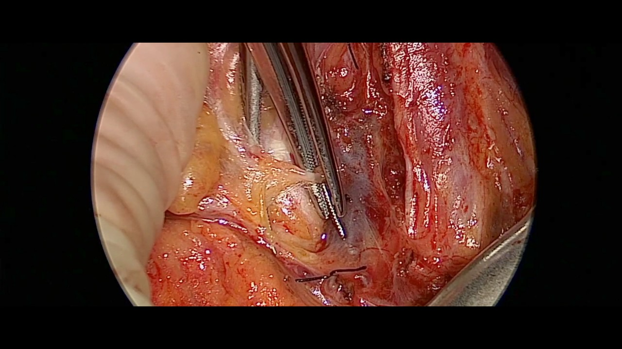 Complete Left Lateral Neck Dissection - YouTube