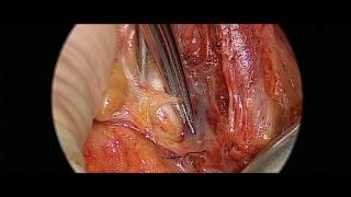 Complete Left Lateral Neck Dissection