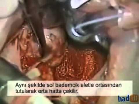 Canlı Bademcik Ameliyatı