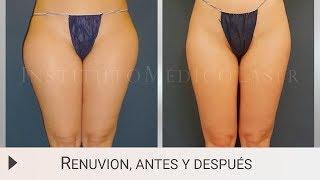Renuvion Jplasma - Antes y después en IML (Madrid)
