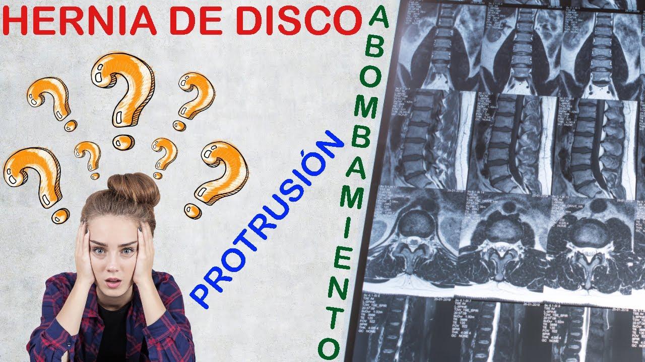Protrusión Discal