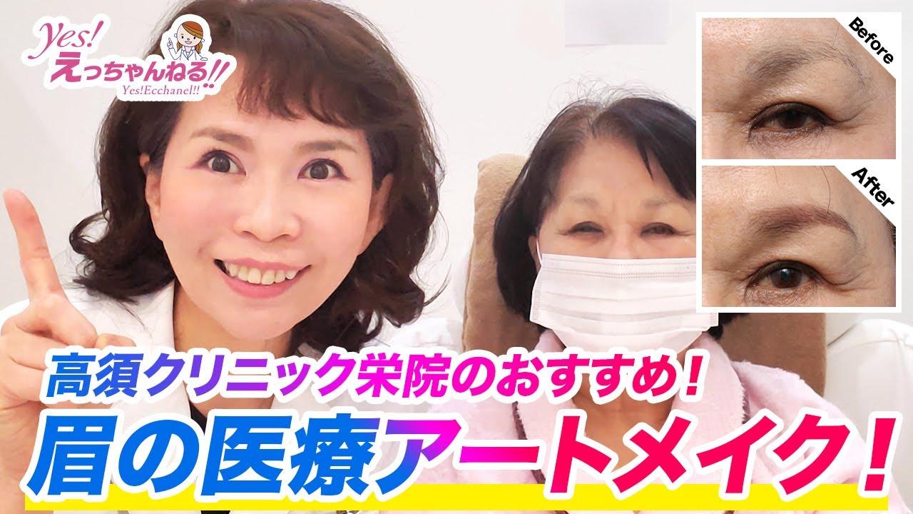 高須クリニック栄院のメディカルアートメイクを紹介します!【眉アートメイク】