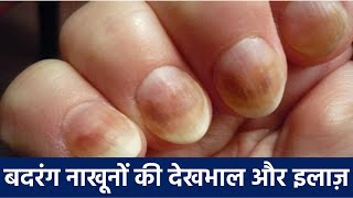 बदरंग नाख़ून के लिए घरेलू उपचार | Badrang nakhun ke liye gharelu upchar (How to Care for Your Nails)