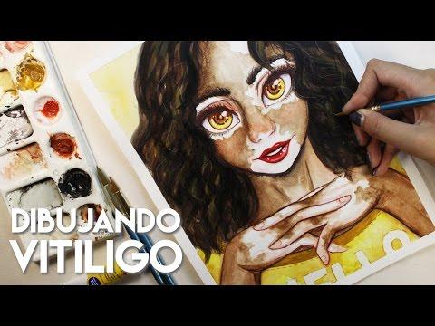 Vitiligo Girl | Diana, el Vitiligo y la inspiración vuelve poco a poco | Diana Díaz