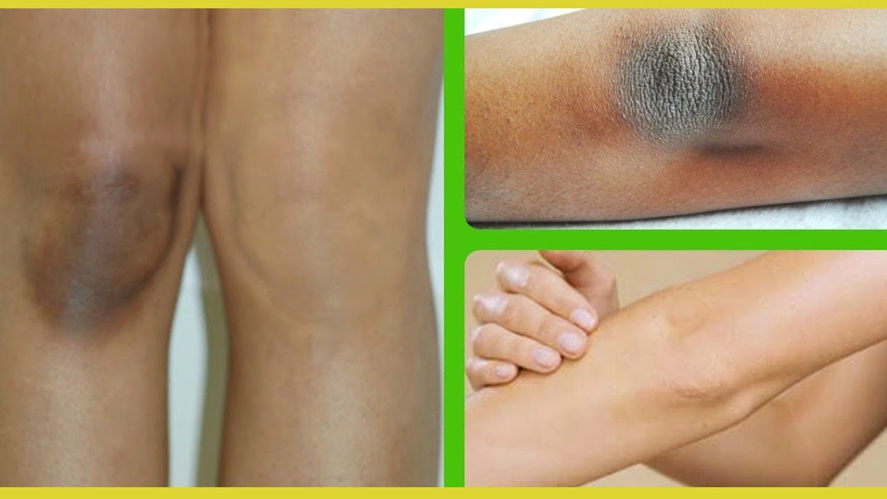 IN 3 DAYS LIGHTEN DARK KNEES AND ELBOW QUICK AND NATURALLY AT HOME