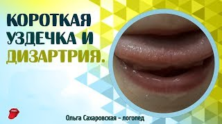 Как понять, короткая уздечка языка или нет? Дизартрия, уздечка языка и звукопроизношение.