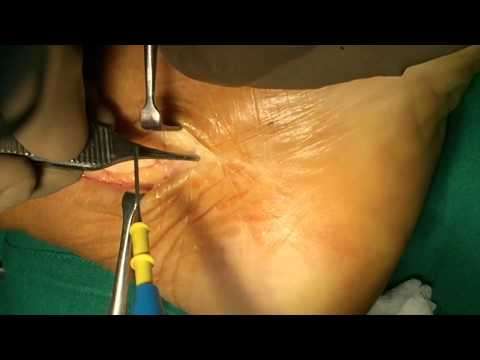 Tarsal tunnel release : foot and ankle surgery