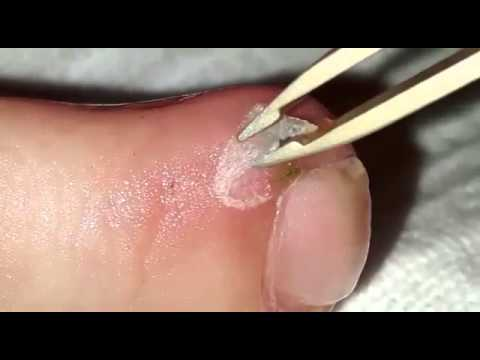 Hair stuck in toe for weeks