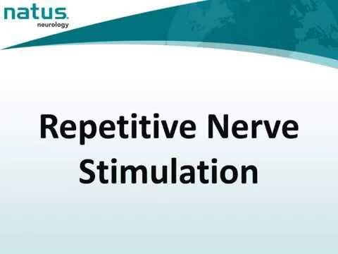 17. UltraPro Repetitive Nerve Stimulation