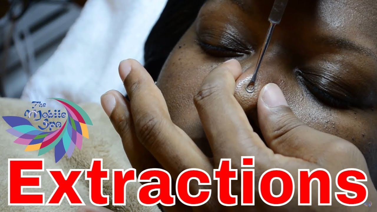 extractions in a facial