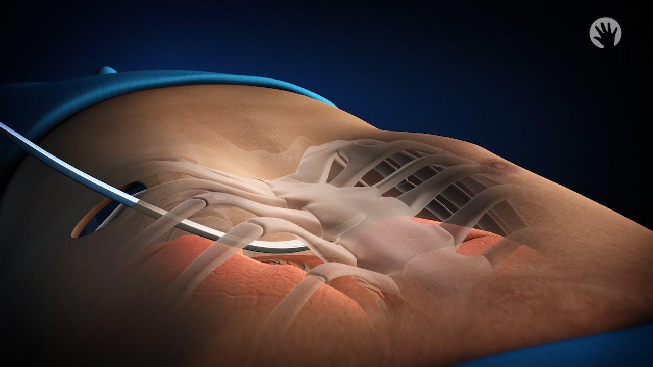Condyloma eltávolítás - Urológia | Med-Aesthetica, Condyloma kezelés Penzában