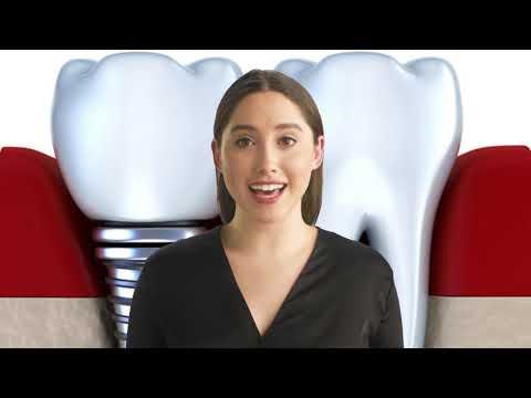 Viruet Periodontics : Best Dental Implants in Fort Myers FL