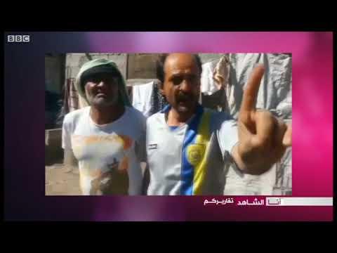 أنا الشاهد: نعرض معاناة النازحين اليمنيين في مخيم السلام بمحافظة إب  - 22:21-2018 / 3 / 15