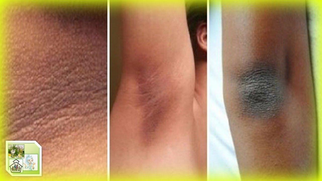 natural masaje piel oscura