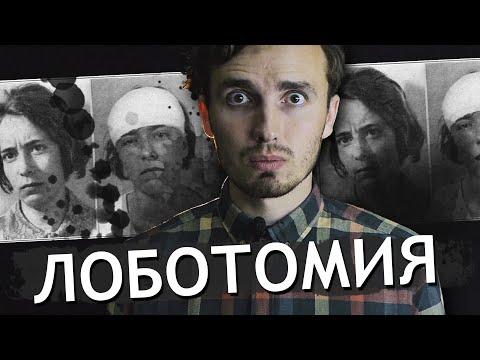 Лоботомия - [История