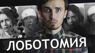 Лоботомия - [История Медицины]