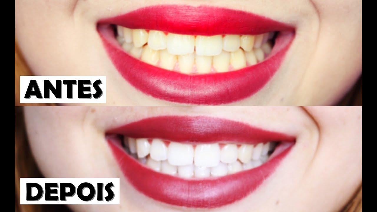 3 Formas De Clarear Os Dentes Em Casa Youtube