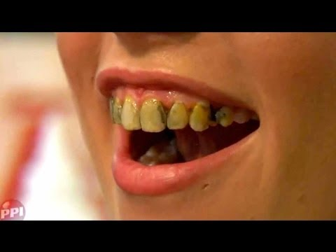 How To Stain Your Teeth With Fleet Street Pegworks Tooth Lacquers