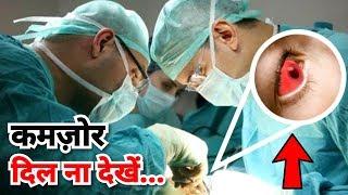क्या होगा अगर OPERATION के बीच ही आपको होश आ जाये तो (Medical Science Surgery Case Study)