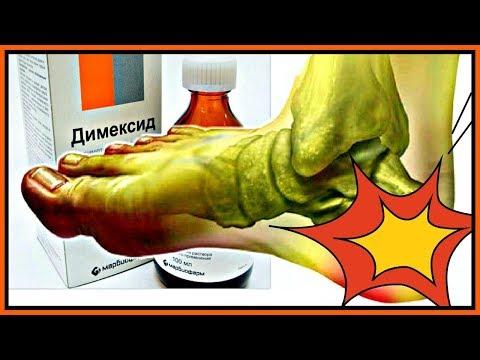 Шипы на пятках, ногах: лечение, причины и симптомы