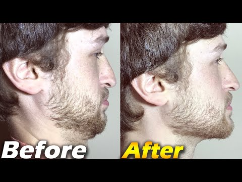 How To Get a GREAT Jawline & INSTANTLY Have a BETTER Looking Face - JawzRsize Review