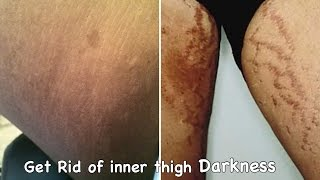 How to get Rid of PRIVATE AREA & INNER THIGH DARKNESS.!! Easy n FAST.!!