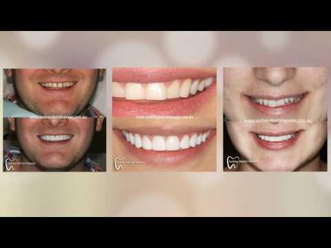 Before and After Photos Sydney | Sydney Dental Veneers (02) 8090 1105
