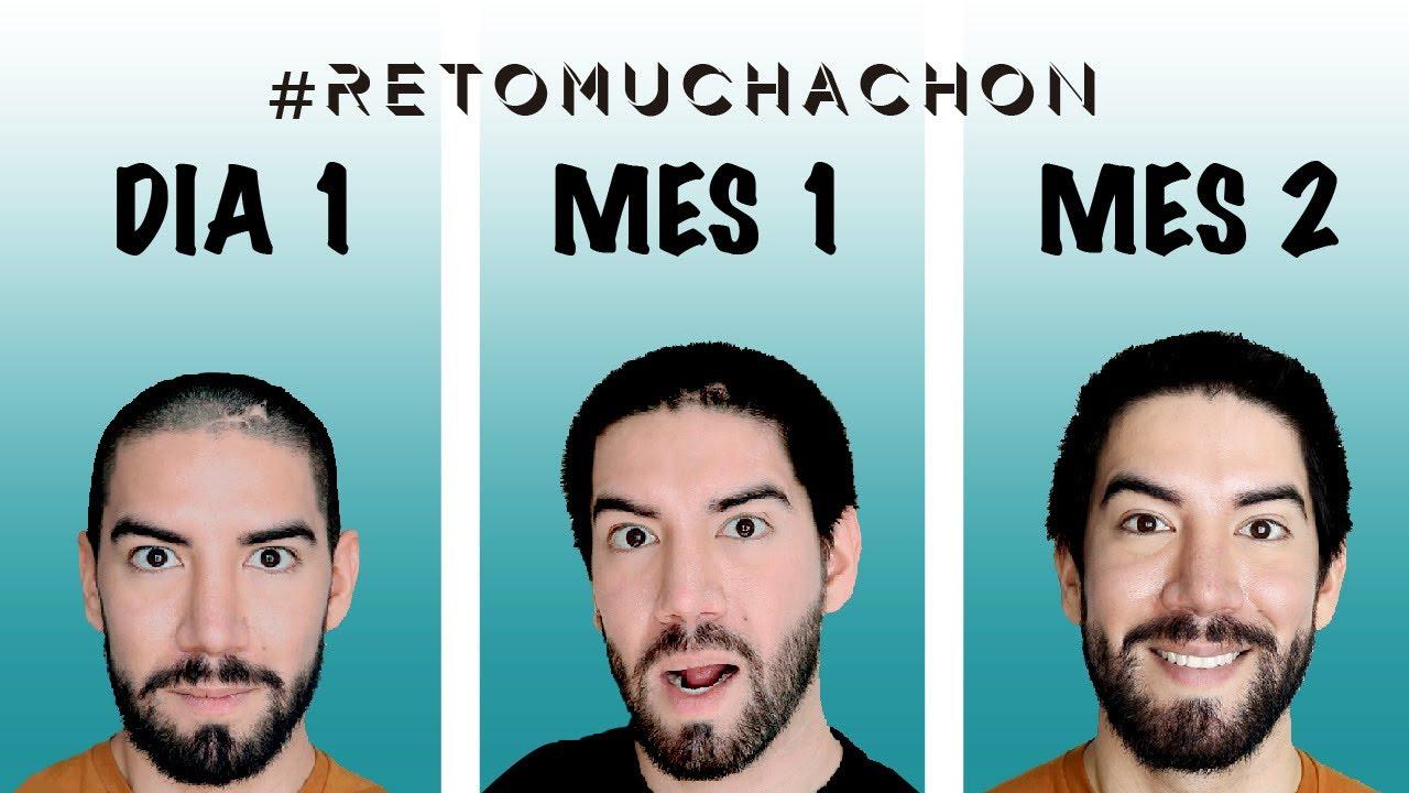 2 MES DEJANDO CRECER CABELLO - J.M. Montaño