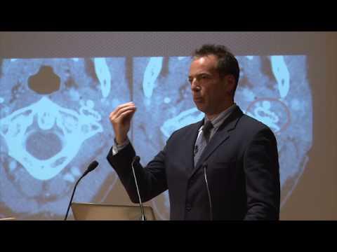 Dr Michael Arata Synergy Health Concepts P.C. CCSVI Treatment for Dysautonomia