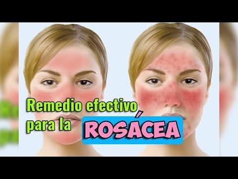 Remedio Efectivo Para Rosácea Un Solo Ingrediente Ecodaisy Youtube