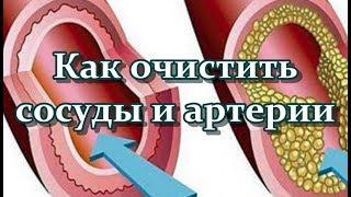 Как очистить сосуды и артерии