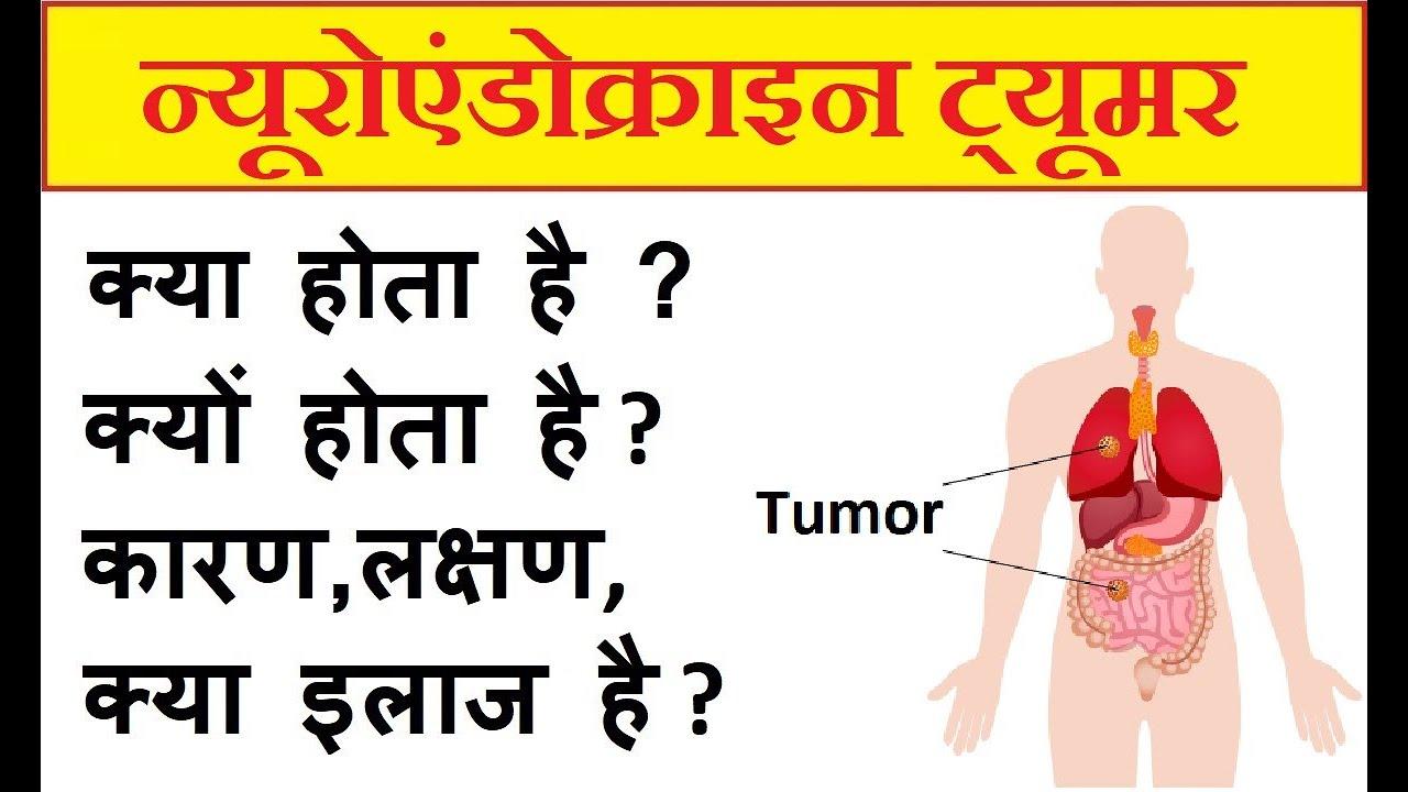 Colorectal cancer ke lakshan, Colorectal cancer ke lakshan. Gastric cancer ke lakshan -