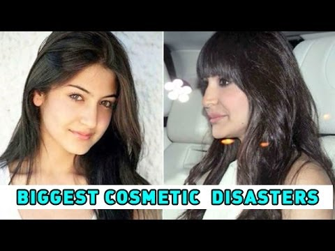 Bollywood S Biggest Cosmetic Surgery Disasters Youtube