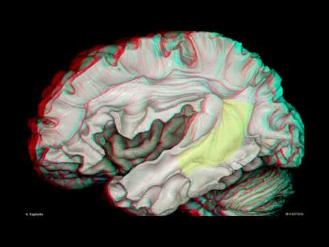 Fiber Pathways of the Cerebrum (3D Anaglyph)