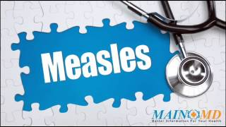 Measles ¦ Treatment and Symptoms