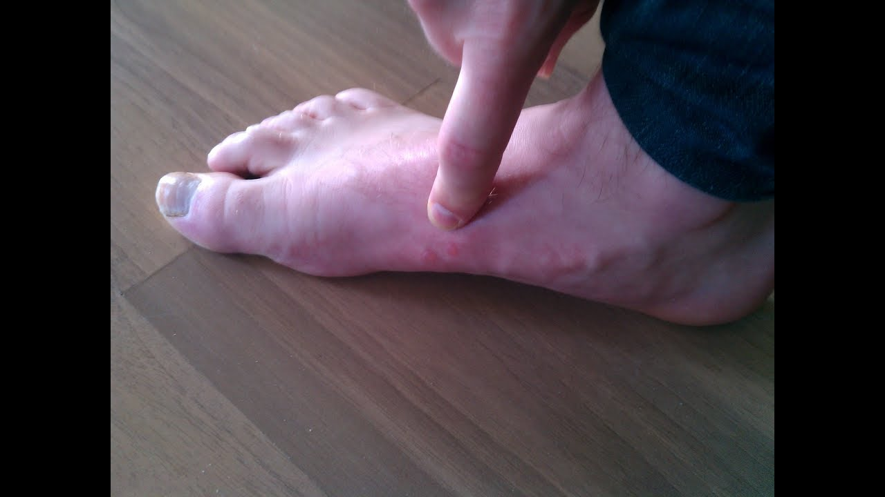 Get Rid Of Blisters On Feet Overnight