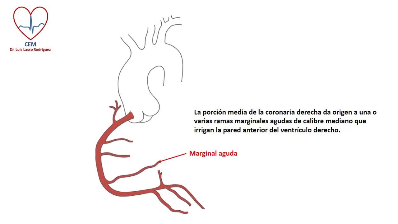 Anatomía de la coronaria derecha - YouTube