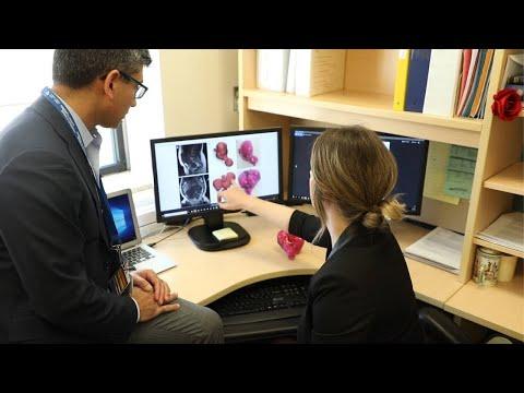 0 - 3D-Drucklabor hilft bei der Entfernung von 50 Tumoren bei Patientin