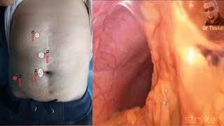 "Abord cœlioscopique d'un abdomen cicatriciel ""Cholécystectomie"" ATCDs Péritonite"