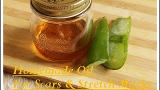 Amazing Homemade Aloevera Oil For Scars And Stretch Marks|Homemade Aloevera Oil Recipe