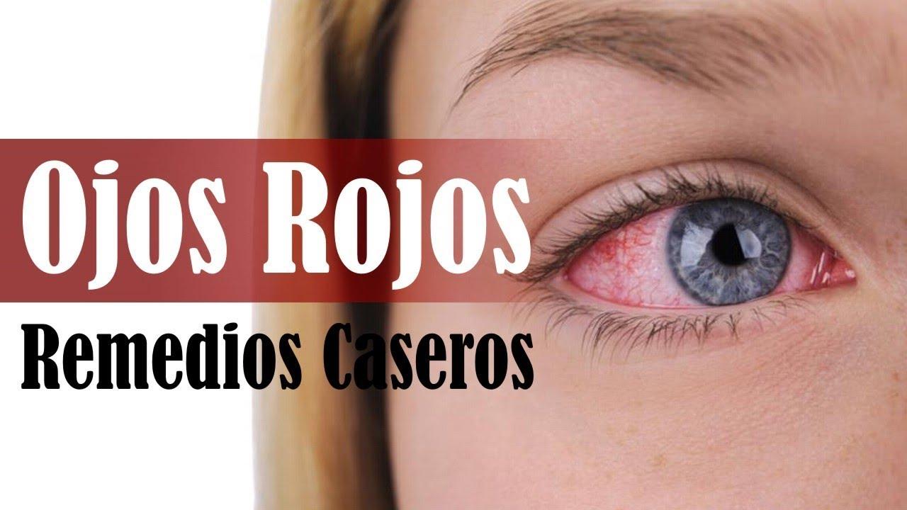 Remedios caseros para los ojos rojos - YouTube